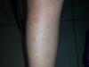 Rash Alérgico