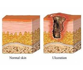 Ulceras en la piel